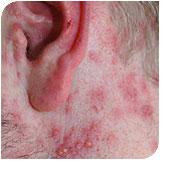 herpetic skin rash #11